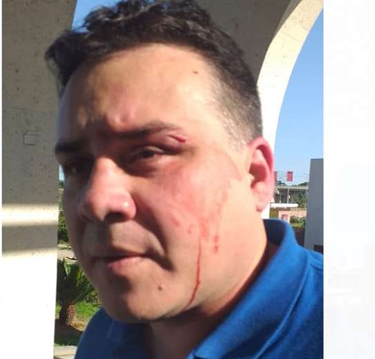 Fernando Blanco denunció que Rodríguez lo atacó por atrás. Foto: Carlos Jordán