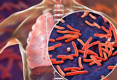 La tuberculosis afecta a millones en el mundo. Foto Internet