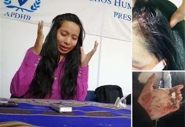 Liria Fuentes fue agredida en la Ceja de El Alto, diferentes sectores piden investigar la agresión