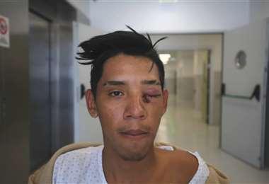 Michel Damián Hurtado, de 18 años, regresaba en bicicleta al local de comidas donde repartía comida cuando fue agredido por los Carabineros | Foto: Cortesía El Mercurio de Antofagasta