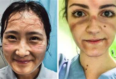 Dos doctoras con el rostro muy marcado por sus máscaras de seguridad
