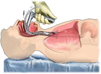 Intubación endotraqueal/ Imagen: Nucleus Medical Media, Inc.