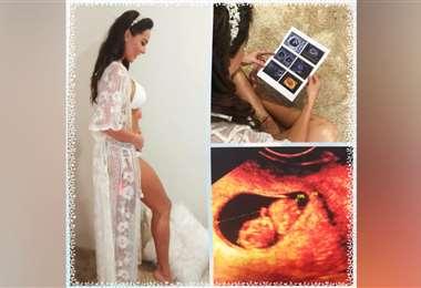 Un collage de las ecografías y la bella mami