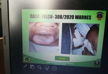 Las lesiones en la mujer incluyen la lengua