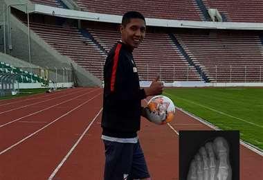 Samuel Galindo estará durante cuatro semanas con el pie derecho inmovilizado. Foto: internet