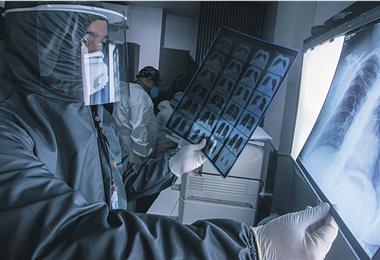 Future–Imágenes Médicas, especialistas analizan una radiografía de pulmones para detectar Covid-19