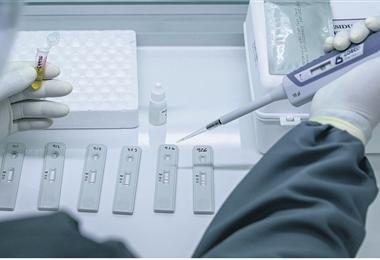 La prueba rápida es una de las medidas que se está aplicando en el país, ante la sospecha de Covid-19 y el incremento de casos