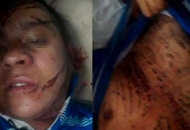 El afectado tiene heridas punzocortantes y un tajo en la cabeza