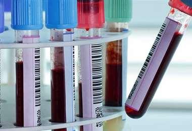 Buscan nuevas opciones contra la pandemia. Foto Internet