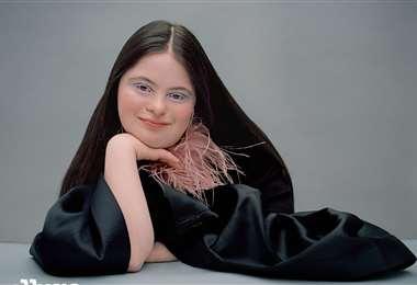 Ellie Goldstein también apareció en editoriales de Vogue Italia