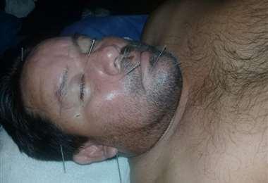 También le practicaron acupuntura con el fin de curarlo. Foto: Ronald Mejía