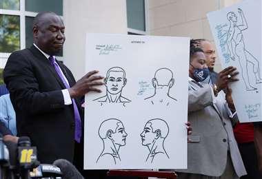El abogado de la familia enseña la trayectoria de la bala. Foto AFP