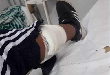 El bagallero yacuibeño se recupera del balazo. Foto. redes sociales
