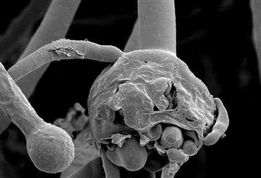 El hongo negro se presenta como consecuencia de algunos tratamientos de Covid
