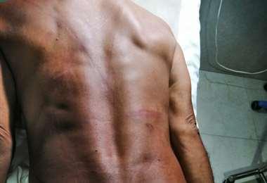 Javier Morales permanece internado luego de ser brutalmente golpeador por loteadores.