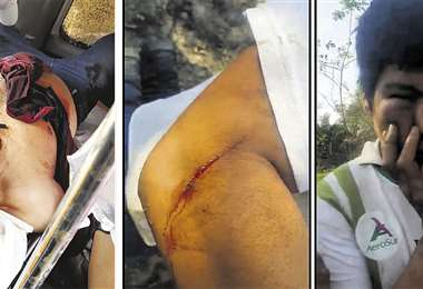 Juan Montaño López tiene tres heridas de bala producto de enfrentamientos. Foto:Ricardo M.
